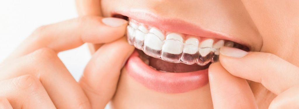 bite denti